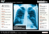 Containing lung cancer