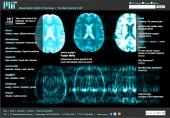 Faster MRIs