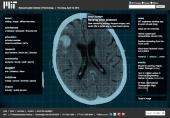 Sensing brain pressure